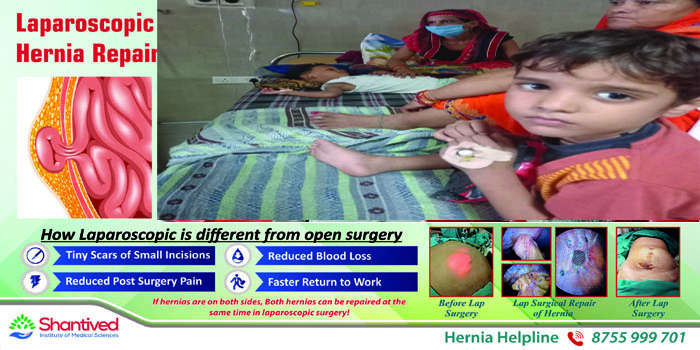 Dengue Strain 2: Water in the lungs of children, swelling in the brain