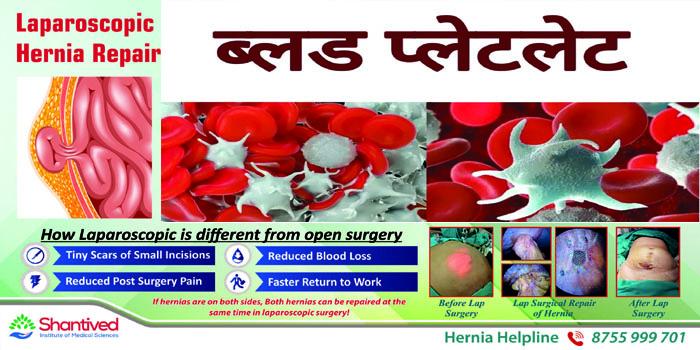 Platelets decreasing in fever, demand for jumbo pack platelets increased in Agra